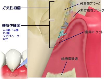 歯周病と心臓疾患・脳血管疾患